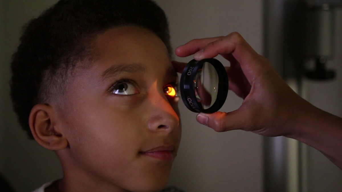Kodak Lens Biomicroscopy