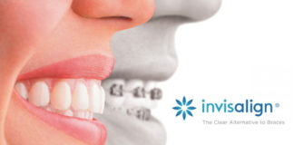 Antosz Vincelli Orthodontic Invisalign